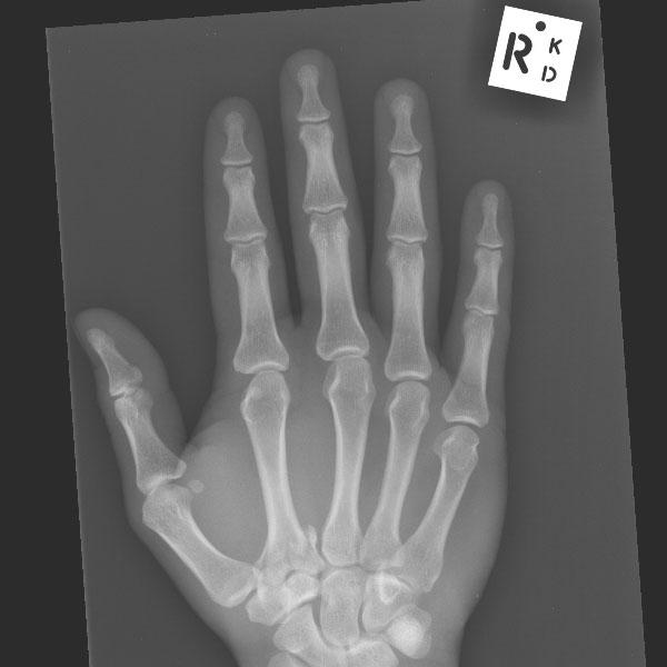 X Rays Riverradiologyriverradiology